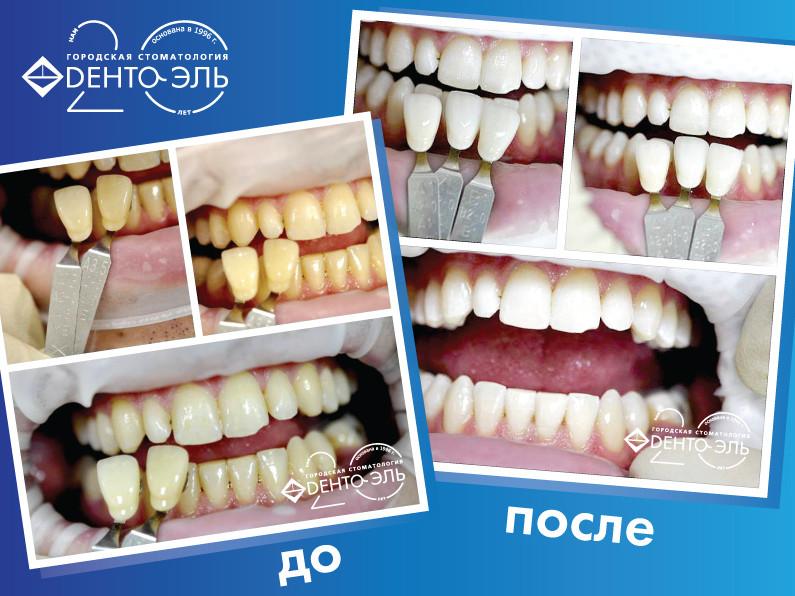 Лечение и протезирование зубов минск