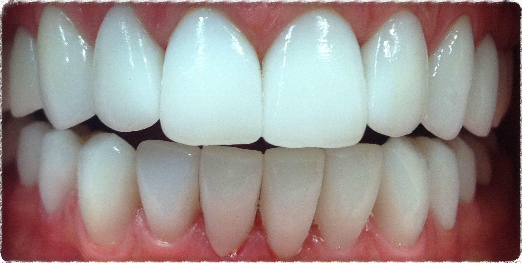 Безметаллокерамические зубки