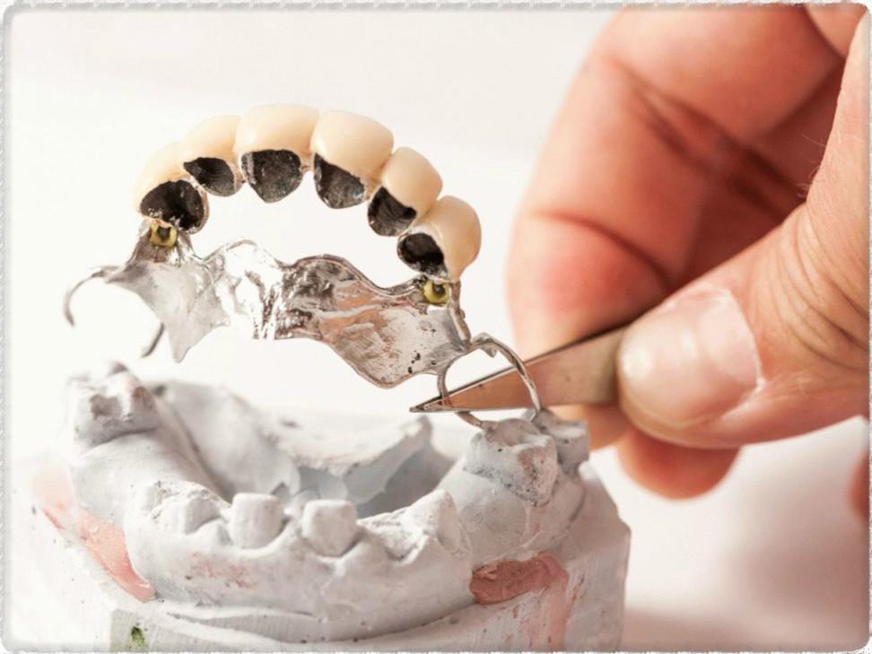 Протез на зубы