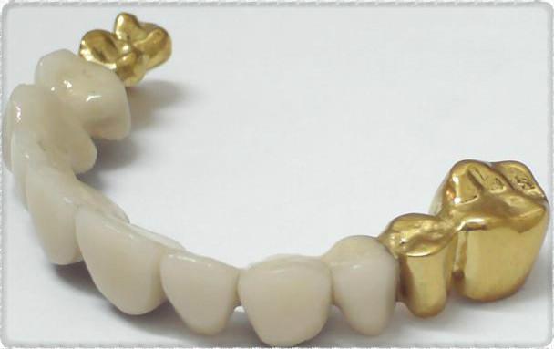 Коронки золото и керамика