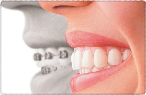 Ортодонтические каппы
