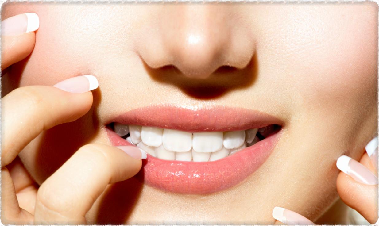 Улыбка после шинирования зубов