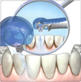 Лечение зубиков