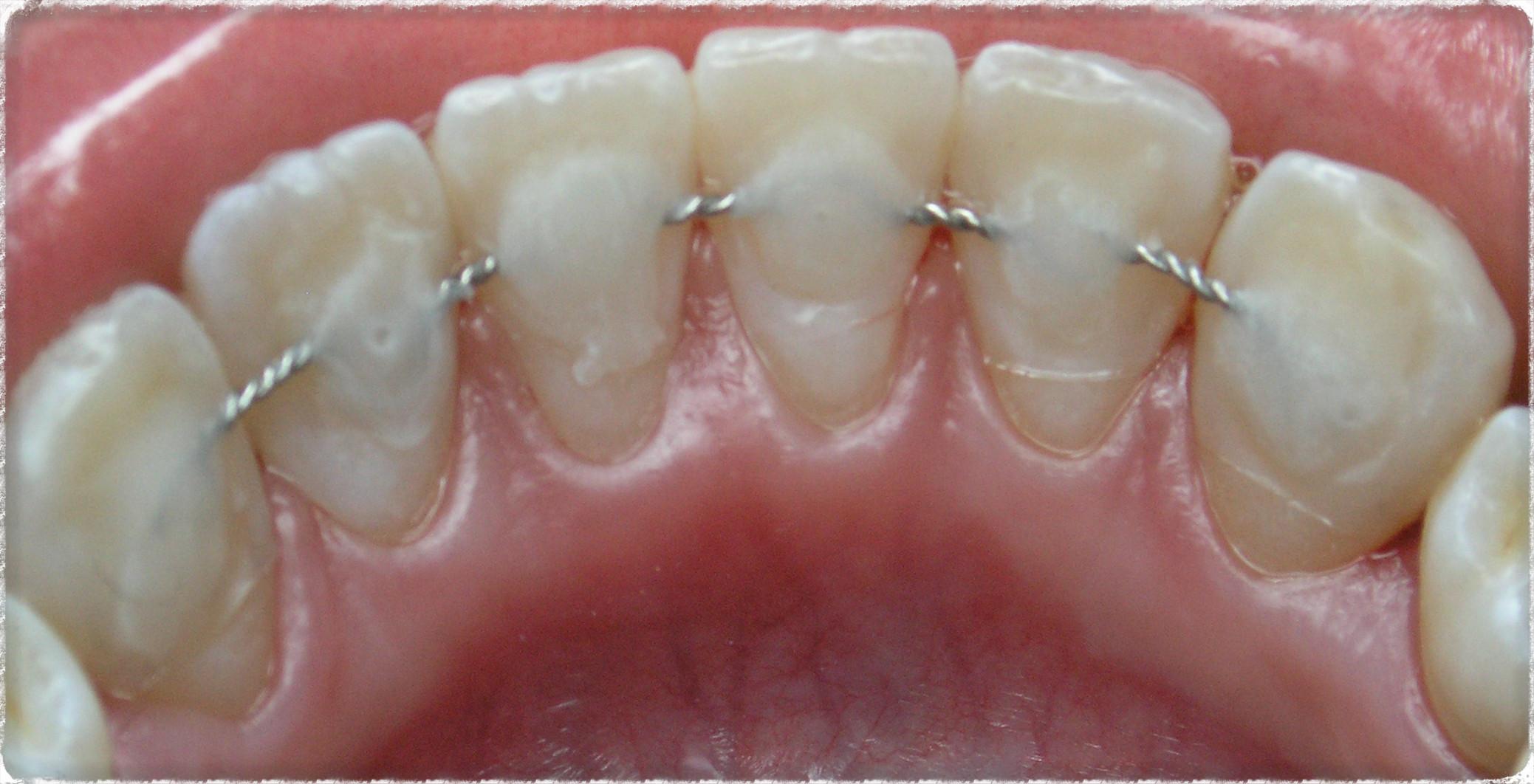 Картинки по запросу Шинирование зубов