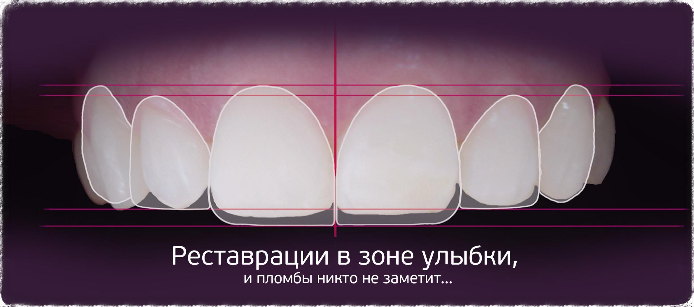 Реставрация в зоне улыбки