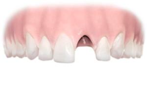 Зубики
