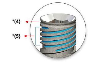 Достоинства имплантов Cortex