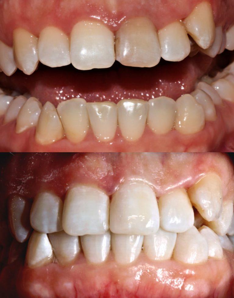 Результат внутриканального отбеливание зуба 21 и его реставрация: работа Ханиной Анастасии Игоревны
