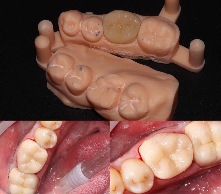 Непрямая реставрация жевательной группы зубов - работа Ханиной Анастасии Игоревны