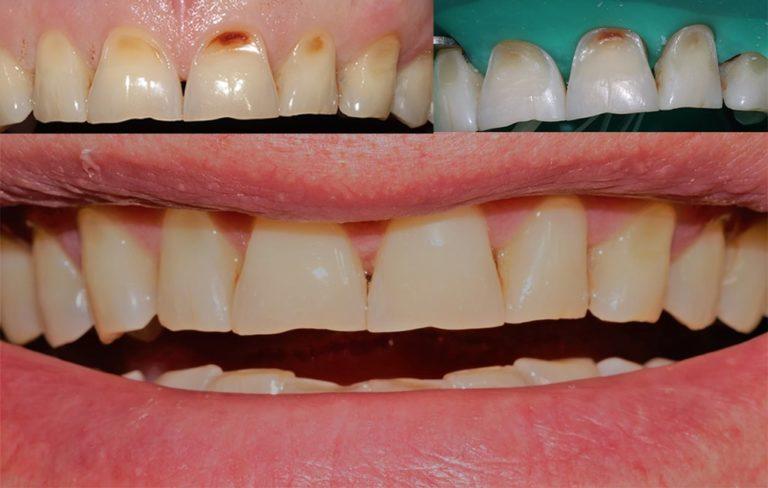 Прямая реставрация зубов 1.1, 2.1, 2.2; неуточненные эрозии эмали - работа Ханиной Анастасии Игоревны