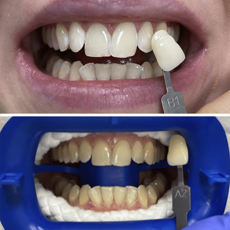 Фото работ доктора Гндлян. Отбеливание зубов системой Zoom4 (до и после)