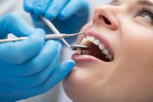 Профессиональная чистка зубов в клинике