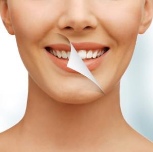 Быстро удалить зубные камни