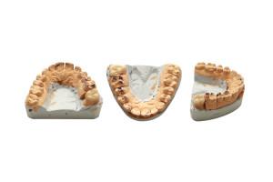 Как проводится удаление зубного камня