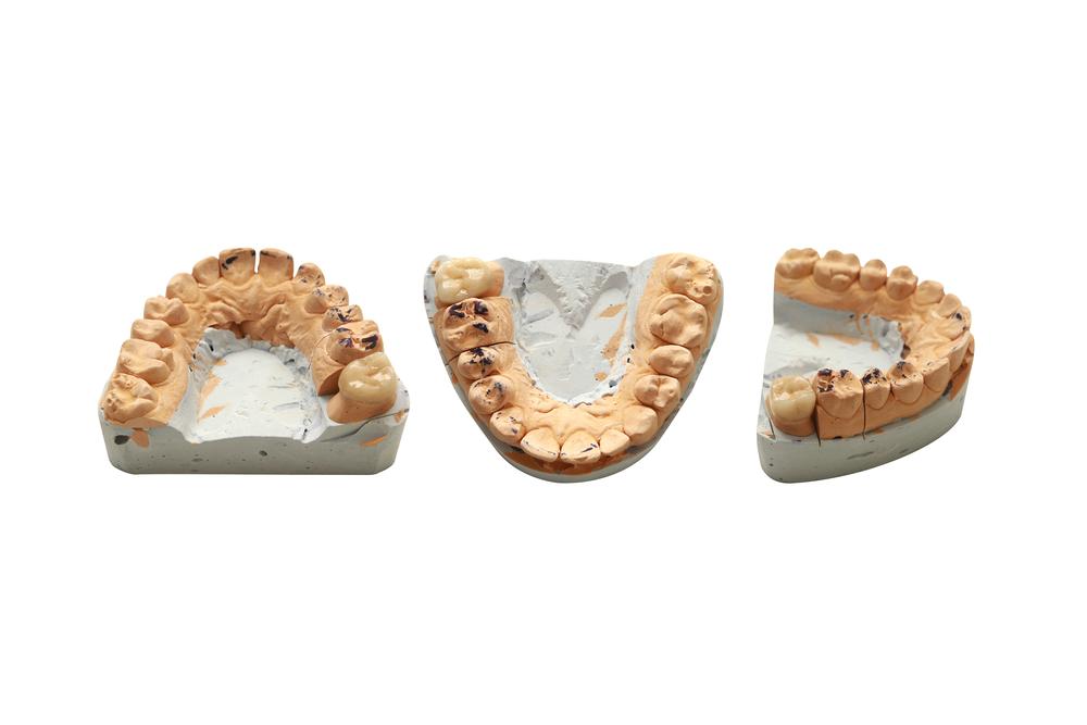 Как проводится удаление зубного камня?