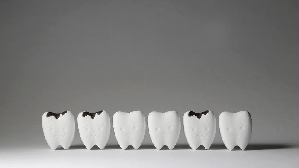 Почему востребовано и как выполняется удаление зубного камня