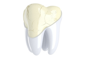 Трещина зуба