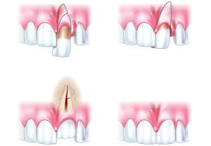 Виды вывиха зуба