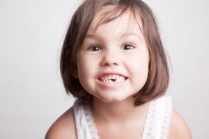 Потеря молочного зуба