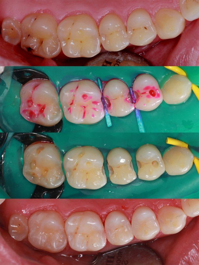 Лечение кариеса под контролем кариес-маркера, эстетическая реставрация зубов в одно посещение