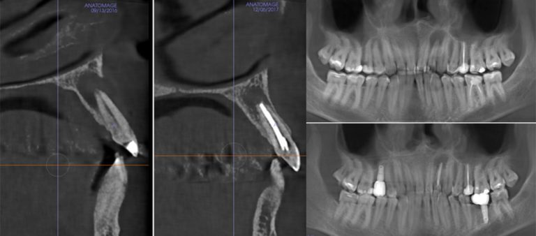 Эндодонтическое лечение 22 зуба и прямая реставрация светоотверждаемым композитом