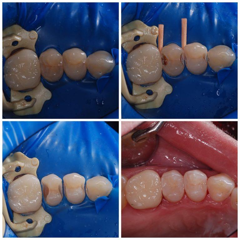 Лечение скрытых кариозных полостей на премолярах. На моляр установлена керамическая вкладка Emax