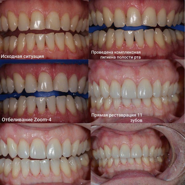 Отбеливание, реставрация при повышенной стираемости зубов после 35-40 лет