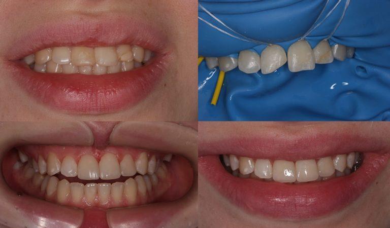 Девушка 18 лет, реставрация 3х зубов, виниры не показаны в раннем возрасте