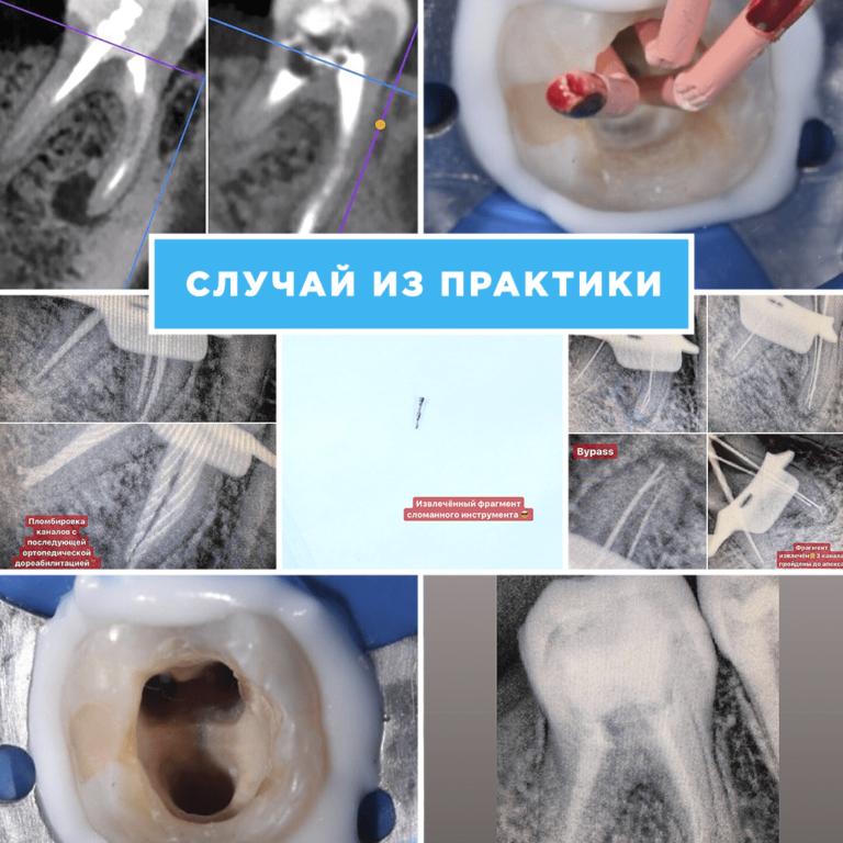 Фото работ доктора Экажевой-1