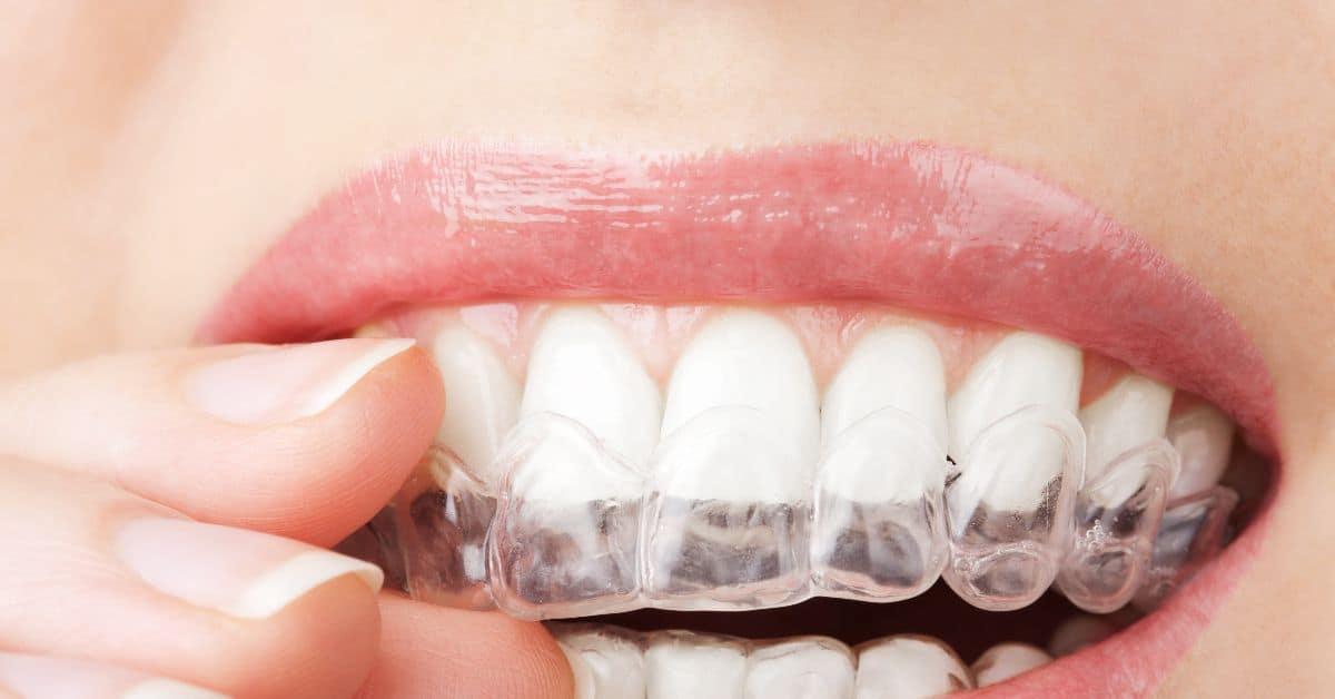 Зубные каппы