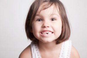 Потеря молочного зуба фото