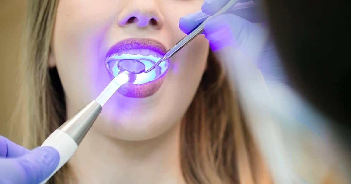 Лечение на несъемной ортодонтической технике