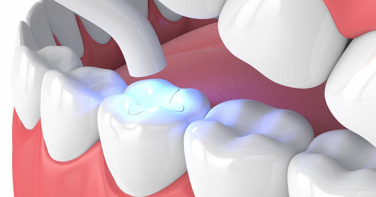 Как восстановить зубы