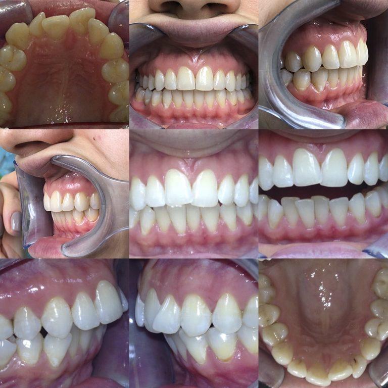 Ортодонтическое лечение на элайнерах 2,5 года