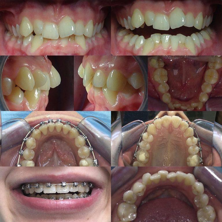 Пациент в процессе ортодонтического лечения, год